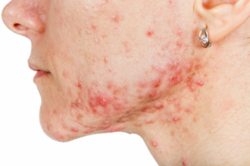 Acne on chin can also be on neck and jawline