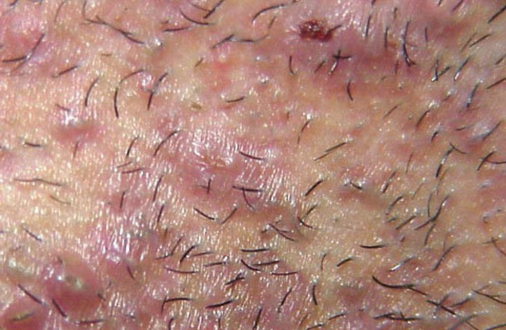 Armpit bumps due to ingrown hair
