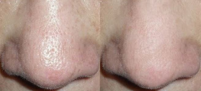Before and after reducing nose pores