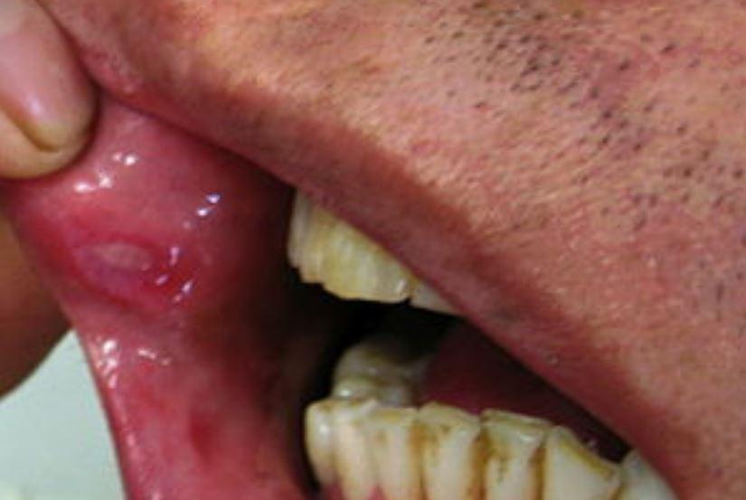 Behcets disease white bump on inner upper lip