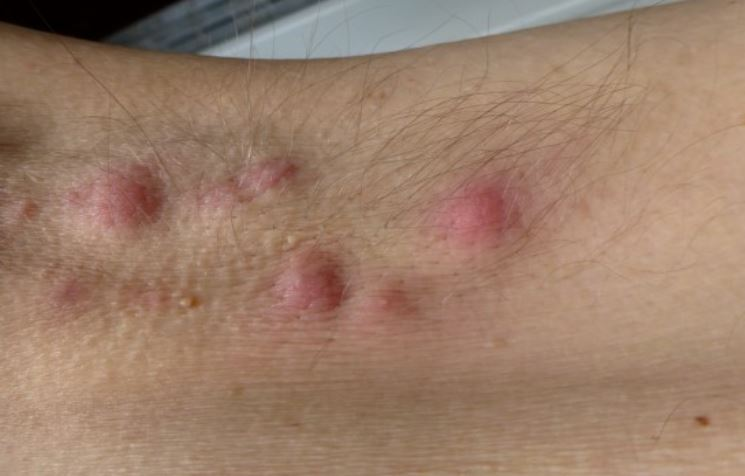 Big lumpy bumps on underarm due to Hidradenitis suppurativa