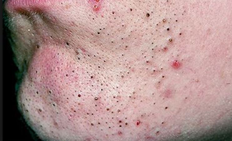 Acne on Chin: Hormonal, Cystic, Meaning and Cures