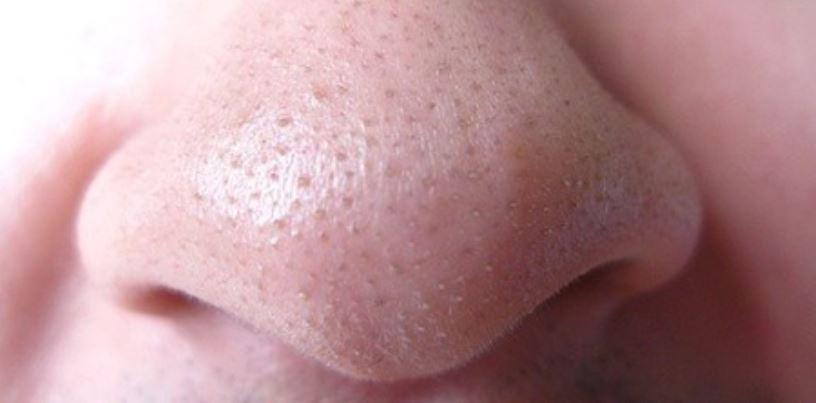 Clogged nose pores