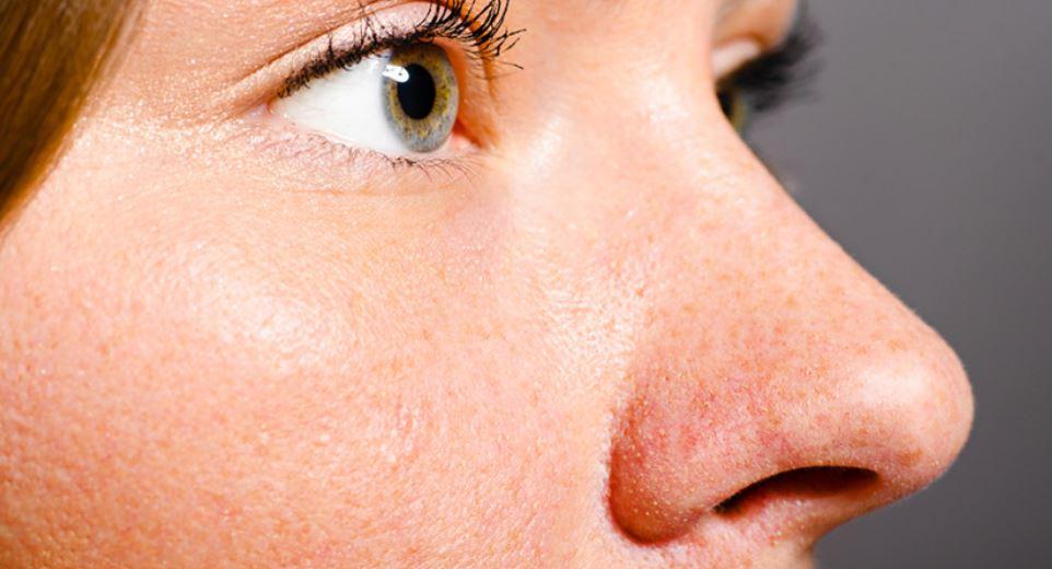How to shrink nose pores