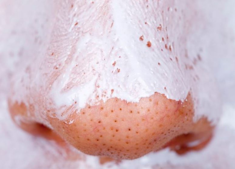 How to shrink or reduce large nose pores