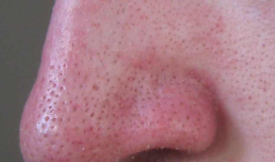 Large pores on nose
