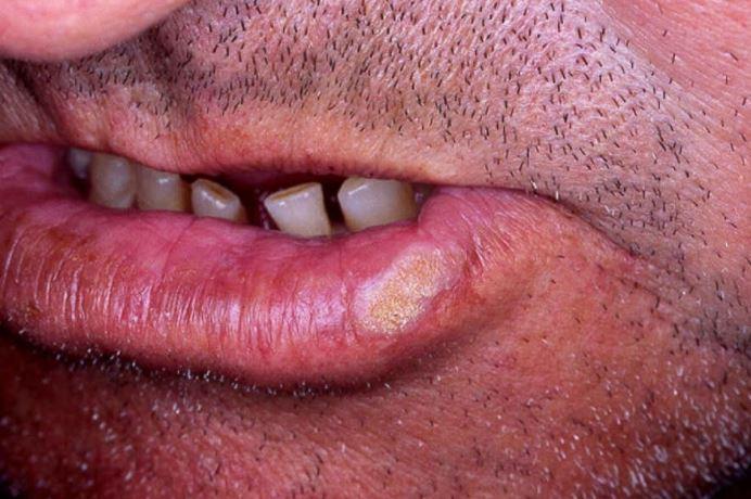 Leukoplakia patch on lower lip
