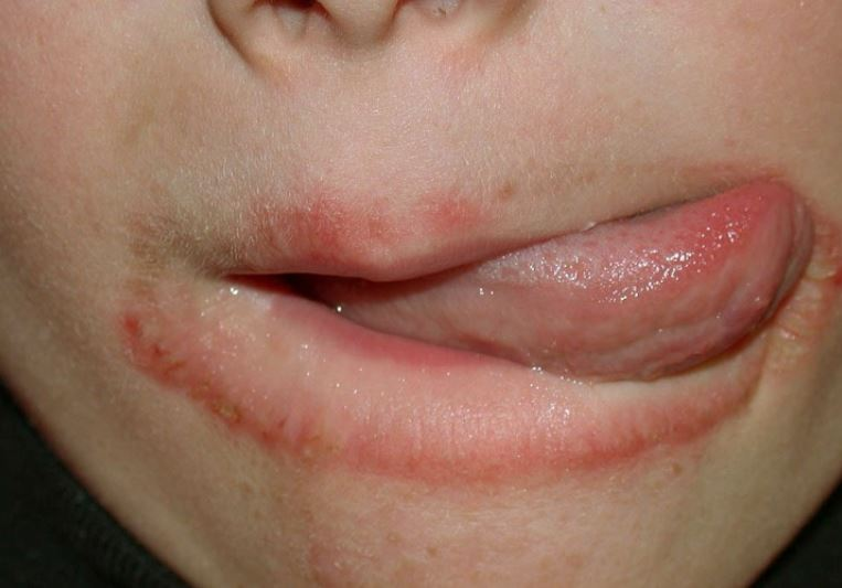 Lip eczema causes treatment and relief remedies for Tattoos and eczema