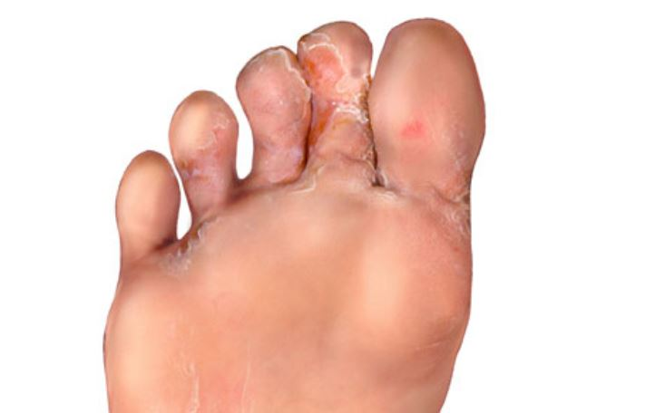Painful severe skin peeling between toes