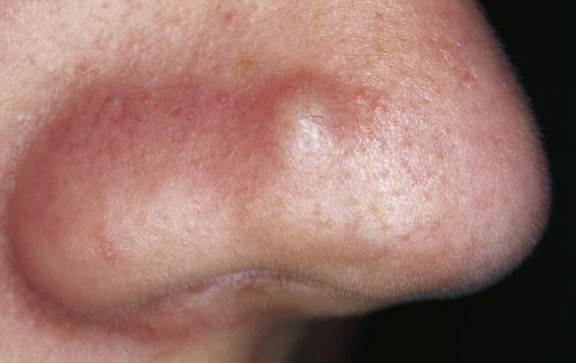 Bumps on Nose Causes: Small, Big, Hard and Painful