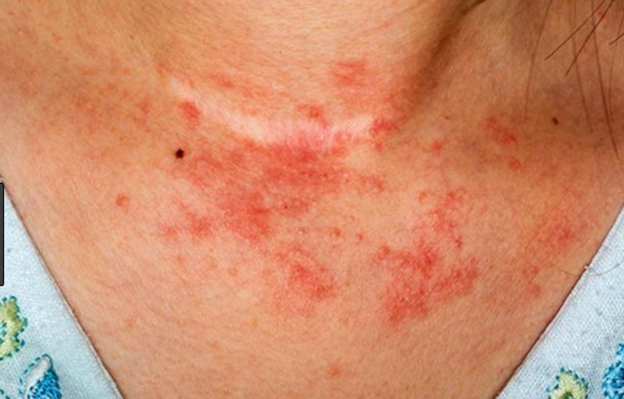 Rash on neck - itchy or bumby