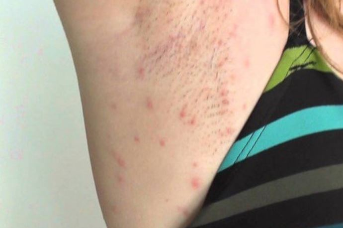 Razor bumps on armpit after shaving