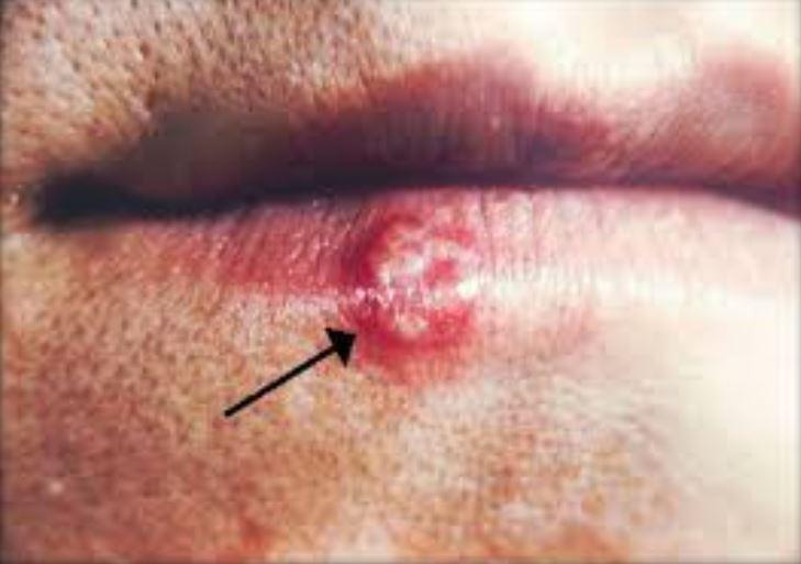 Skin cancer on lips