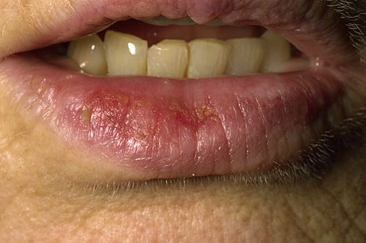 Sunburned Lips Symptoms: Blistered and Swollen Relief | Skincarederm