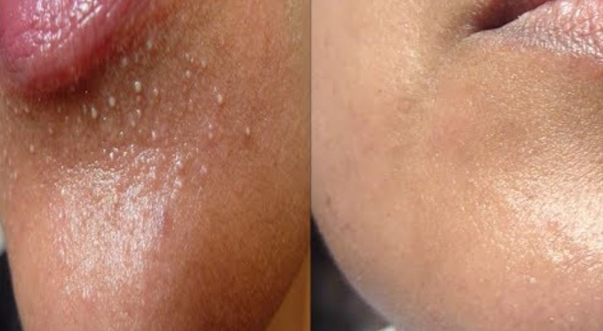 Whiteheads on chin - acne type before and after removal