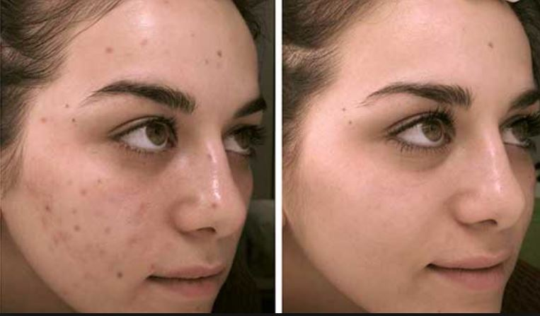 Acne dark spots before and after removal