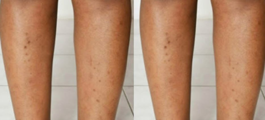 How To Remove Dry Skin From Legs Naturally