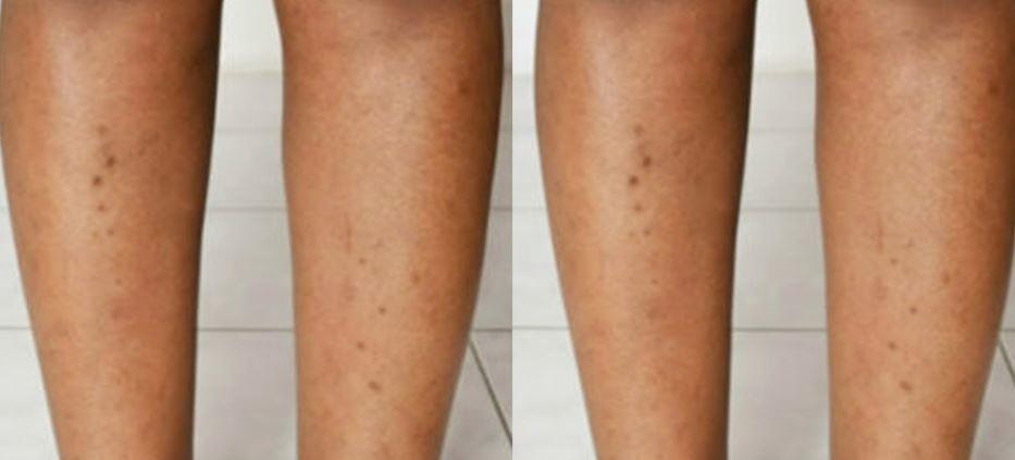 Acne dark spots on legs