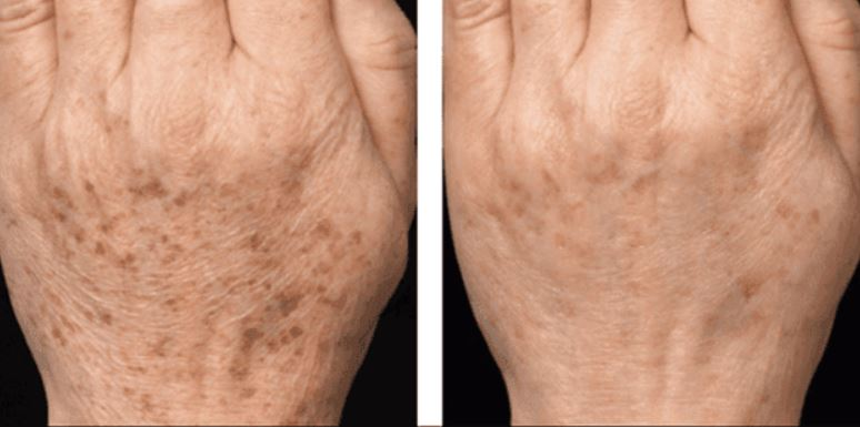 Age spots behind hands before and after laser removal