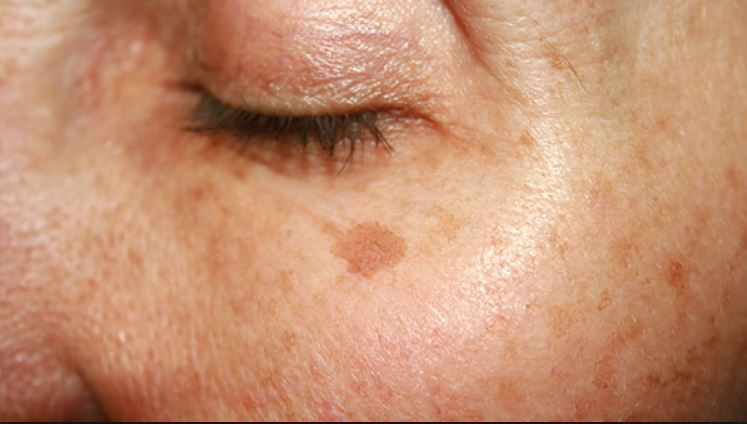 Age spots on face - On the under eye area