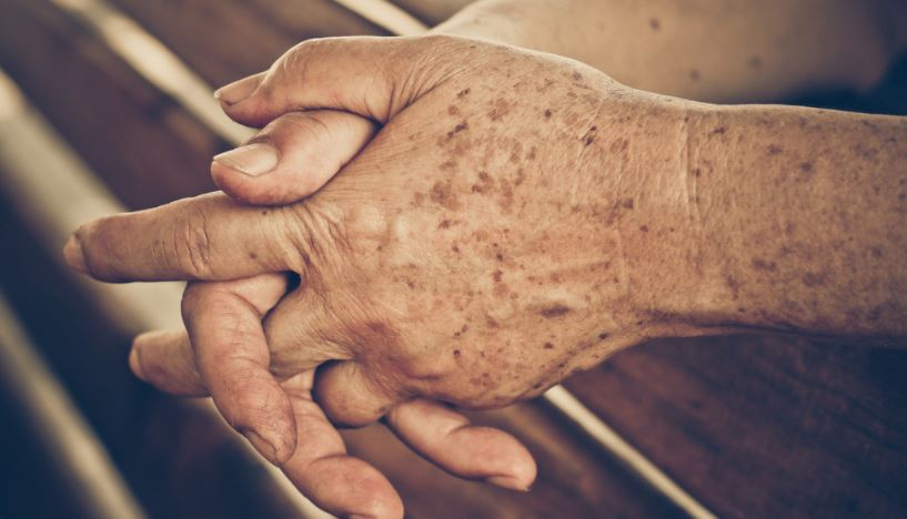 Age spots on hands - Liver spots