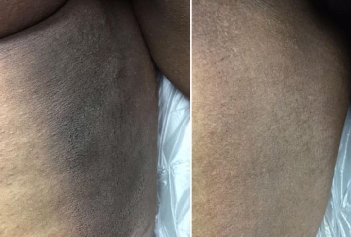 Black Or Dark Inner Thighs Lightening Ways And Creams Skincarederm