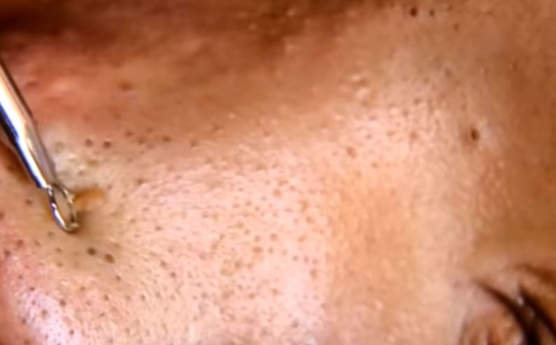 Blackheads on cheeks extraction removal