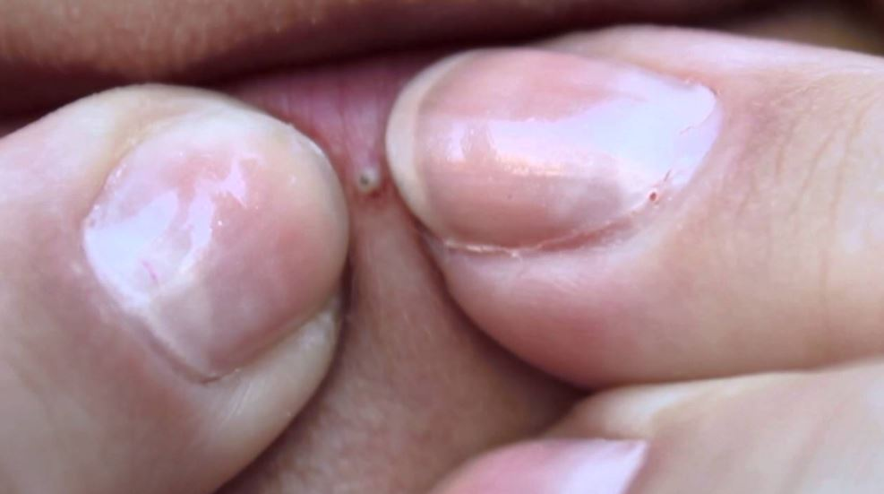 Blackheads on lip line