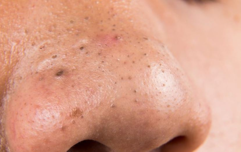Blackheads on nose - how they look like - picture