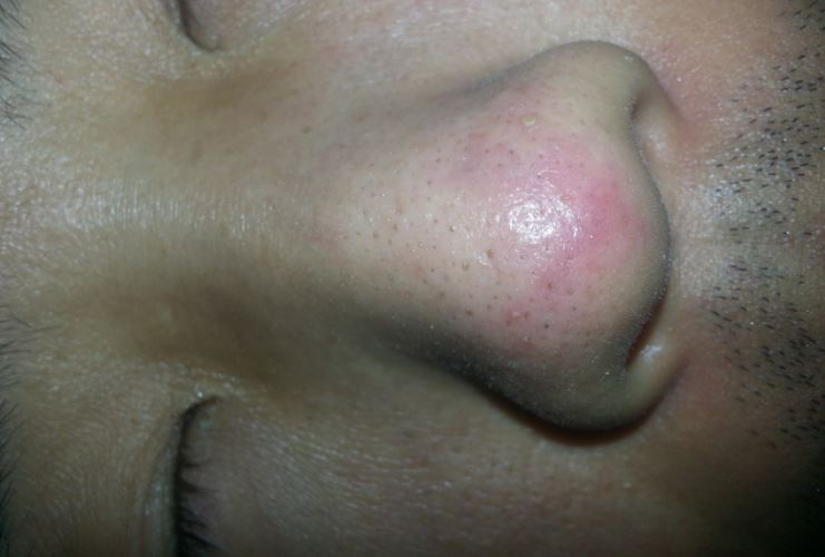 Blind cystic pimple on nose
