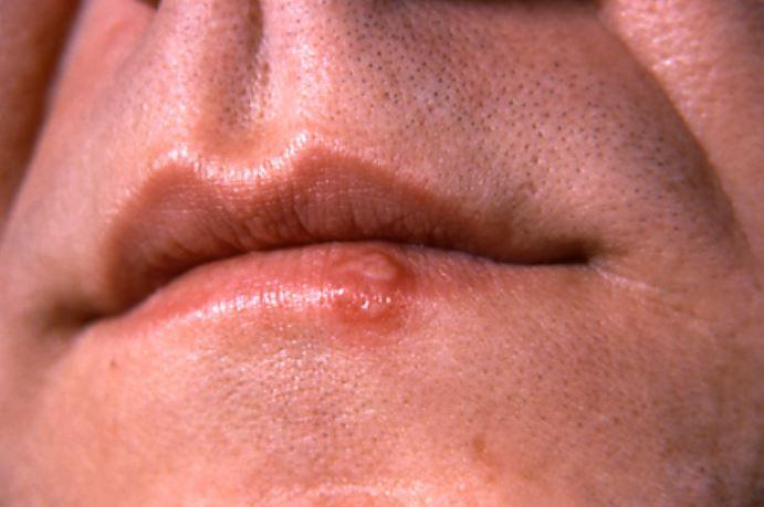 Cold sores vs pimple