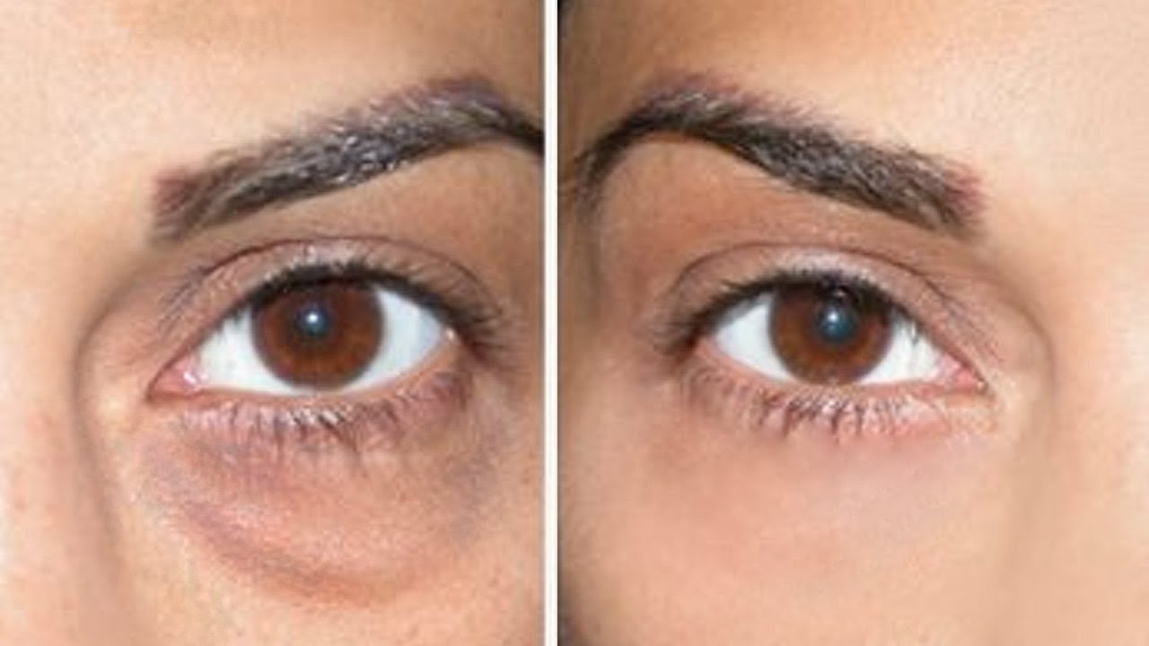 Dark circles before and after concealer