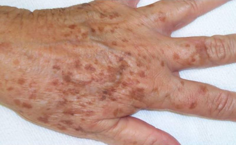 Dark spots on hands
