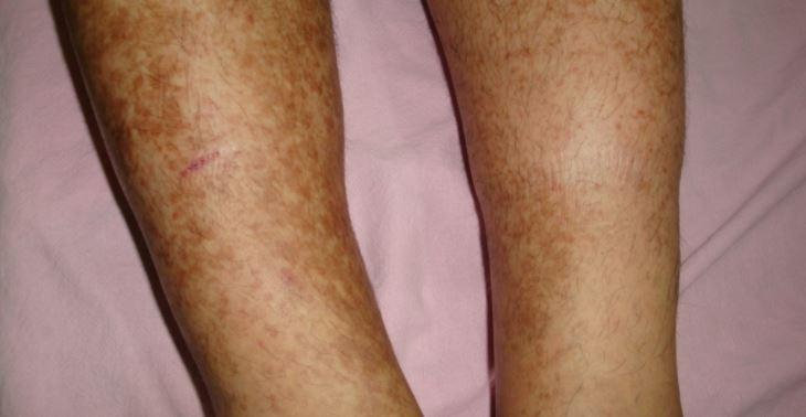 Dark spots on legs - age spots