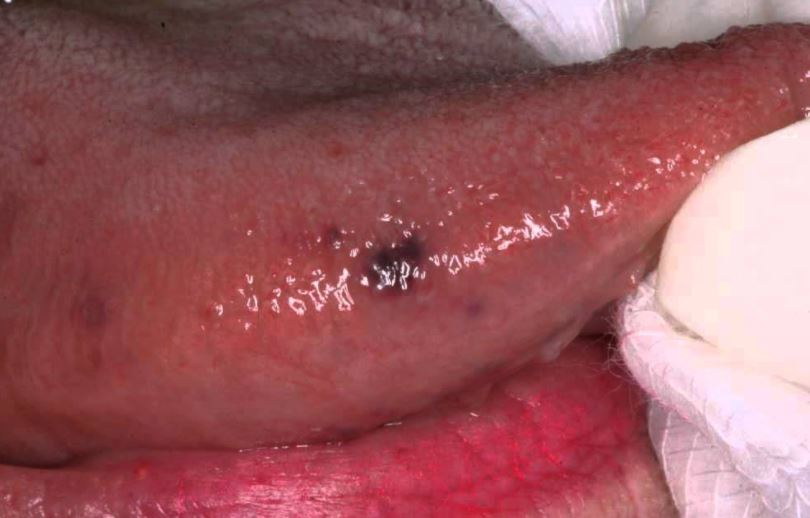 Dark spots on side of tongue