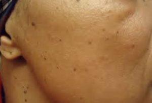 Dark spots on skin - Facial dark or black marks