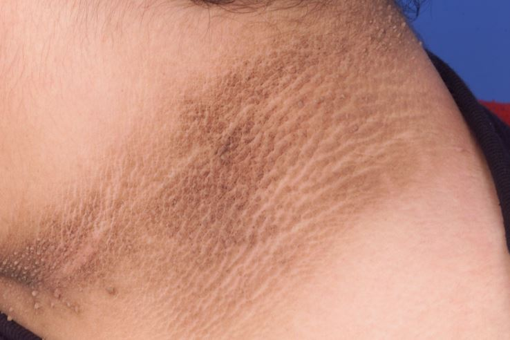 Darkness and dark spots on neck due to acanthosis nigricans