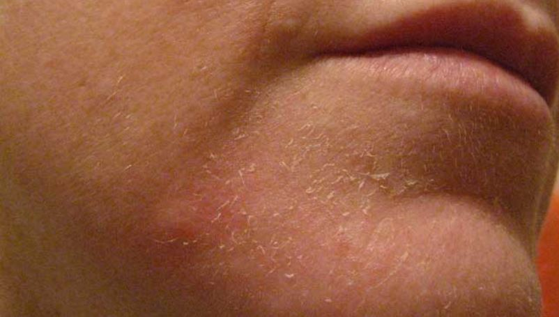 Dry flaky skin on chin or face