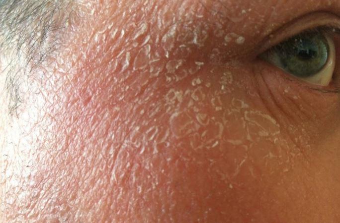 Dry skin and flakes like dandruff