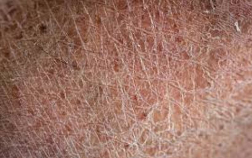 how to get rid of red dry patches on legs