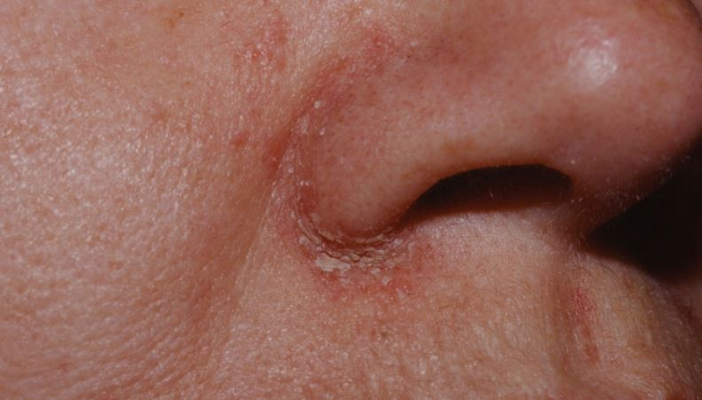 Dry skin around nose and on nose crease due to Seborrheic dermatitis