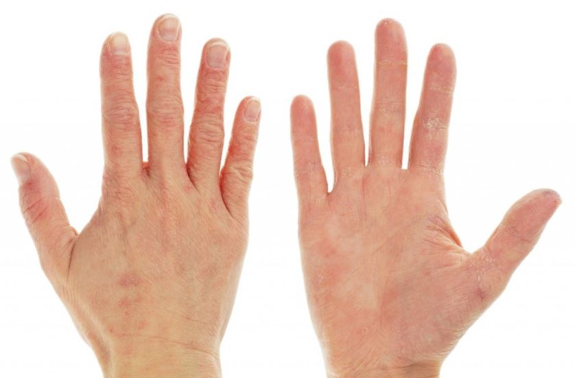 Dry skin on palm and behind the hand