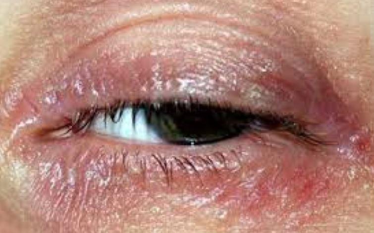 Dry skin rash around eyes
