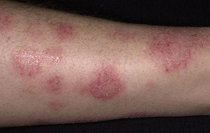 Why Dry Skin Rash on Legs, Nose, Genitals or Eyes ...