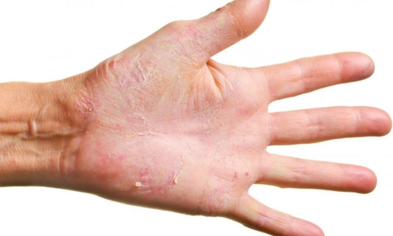 Excessive washing can lead to dry skin on palms that peels also