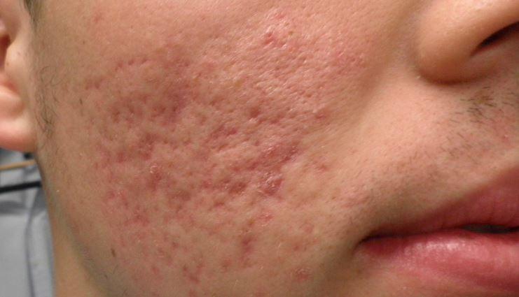 Facial acne scars