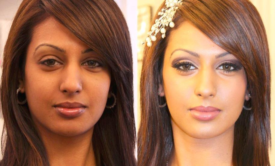 Facial skin whitening - Courtesy of Skin Life Clinic