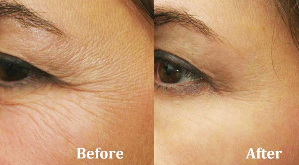 How to get rid of wrinkle under eyes - before and after