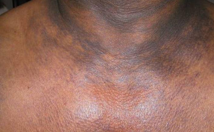 Hyperpigmentation dark patches on neck
