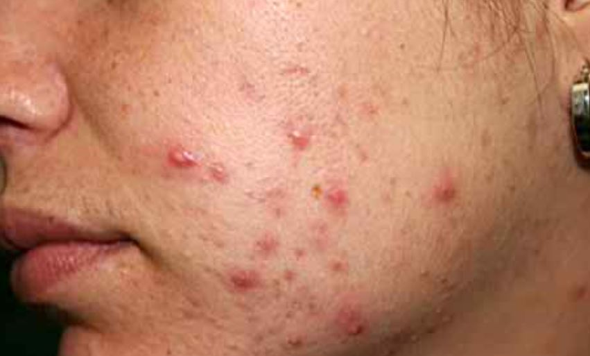 Hypertrophic acne scars on face